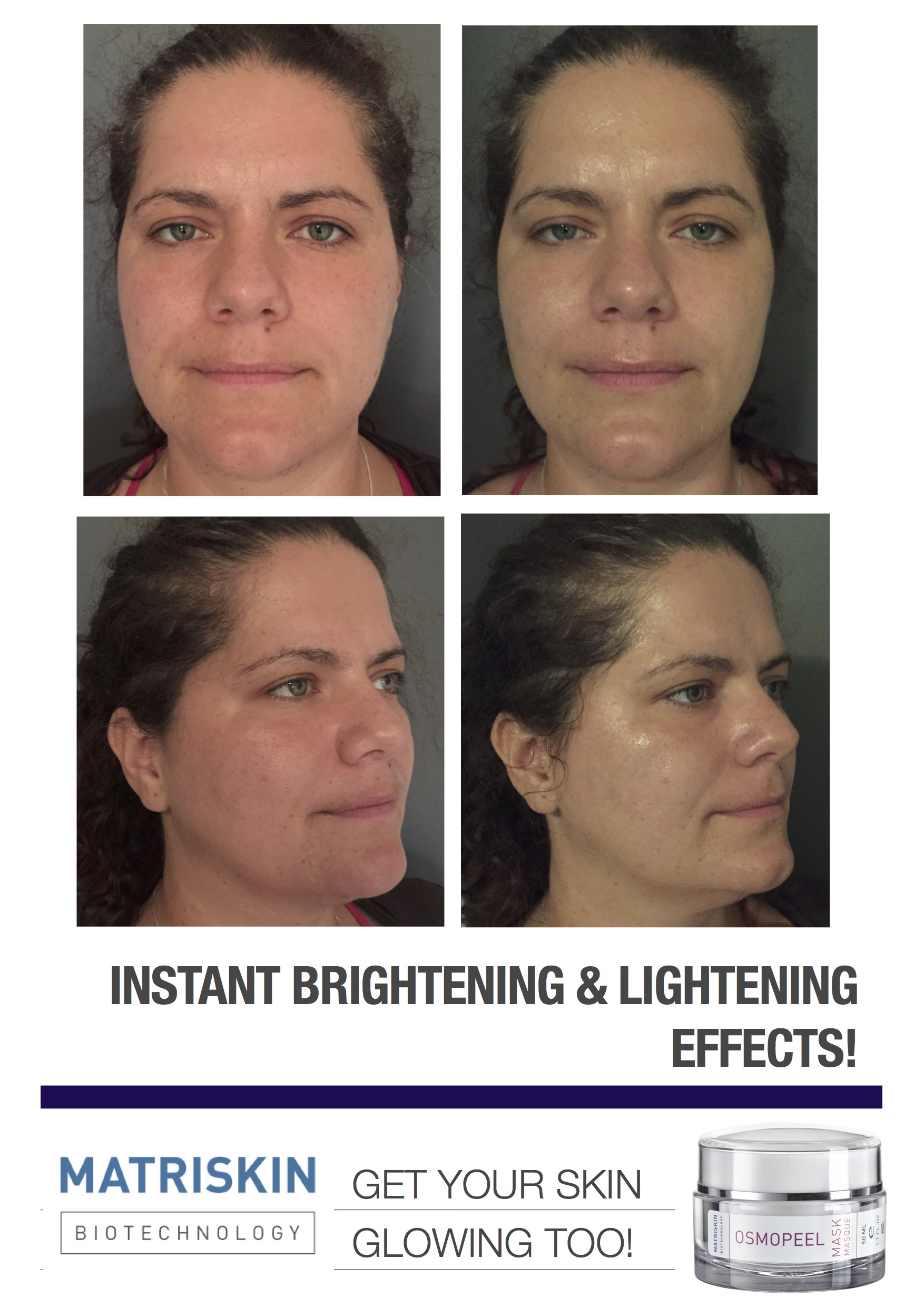 WHY WE LOVE OSMO MASK PEELING SYSTEM! INSTANT RESULTS