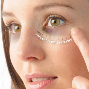 dark-circles-under-eyes